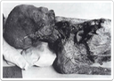 Head and chest of the mummy found in the pyramid of Merenre I at Saqqara.